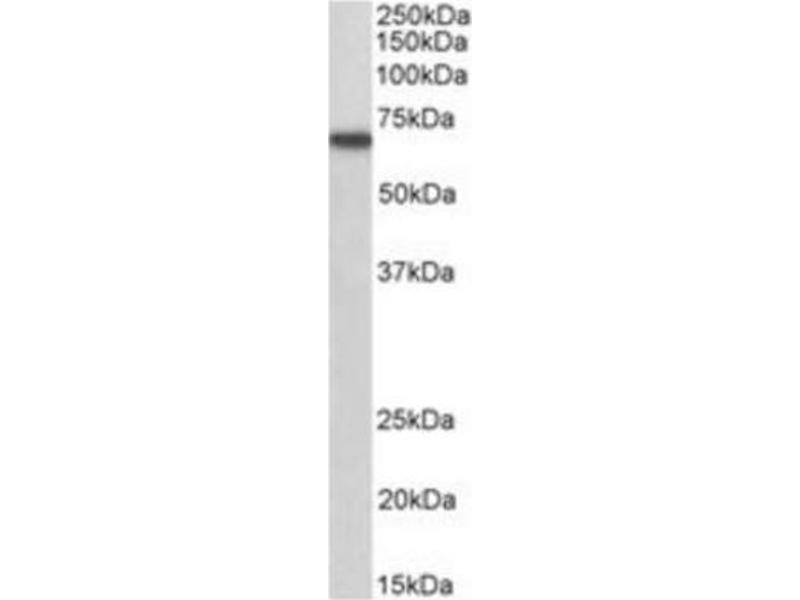 Western Blotting (WB) image for anti-Myotubularin 1 (MTM1) (C-Term) antibody (ABIN268752)