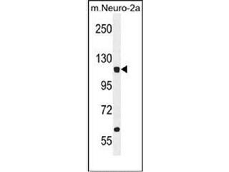 Western Blotting (WB) image for anti-Leucyl-tRNA Synthetase (LARS) (AA 183-213), (N-Term) antibody (ABIN953139)
