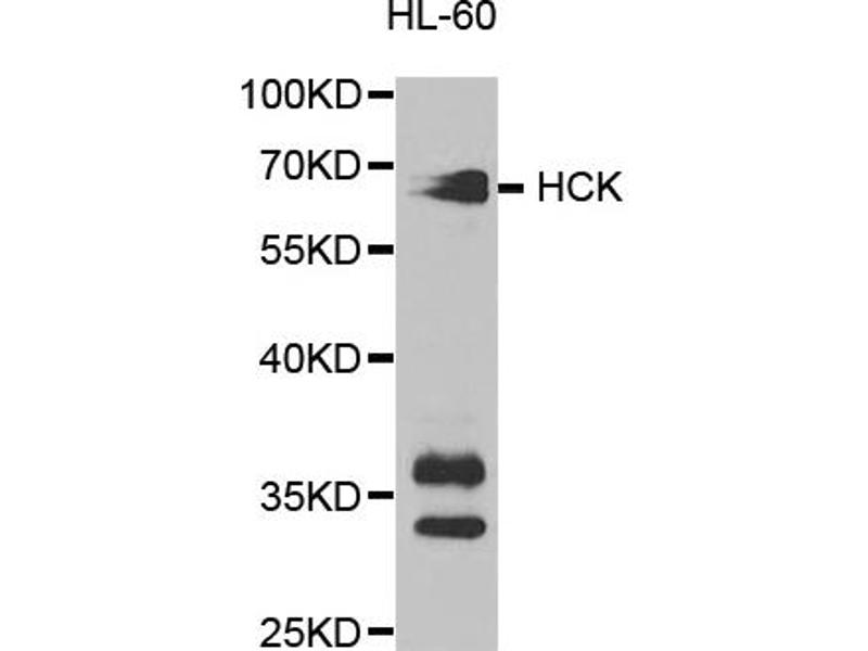 Image no. 2 for anti-Hemopoietic Cell Kinase (HCK) antibody (ABIN6569091)