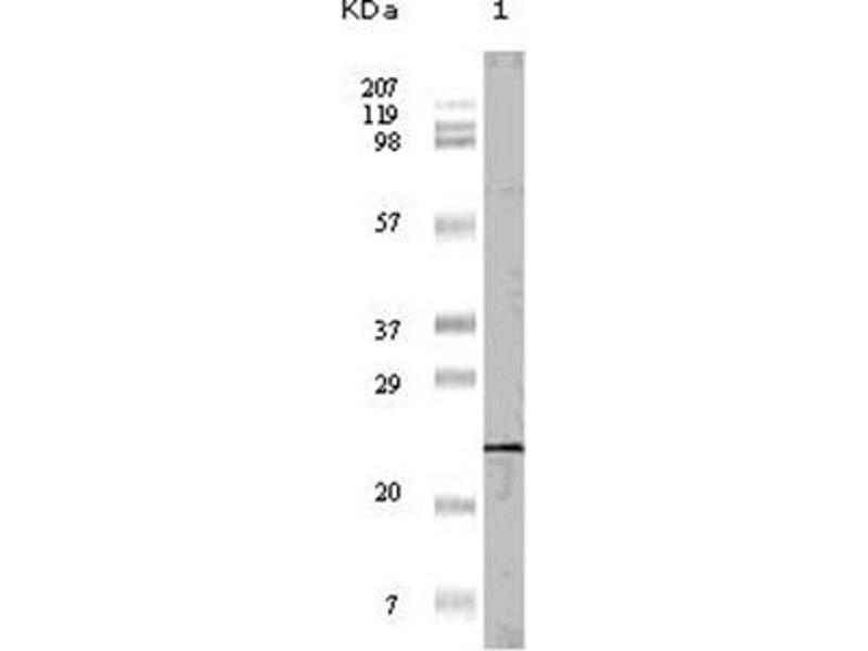 Western Blotting (WB) image for anti-EIF4EBP1 antibody (Eukaryotic Translation Initiation Factor 4E Binding Protein 1) (ABIN1107078)