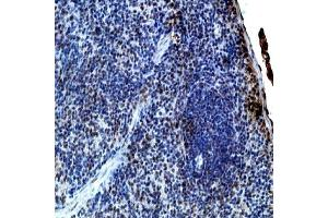 Immunohistochemistry (IHC) image for anti-Interleukin 21 (IL21) (N-Term) antibody (ABIN152155)