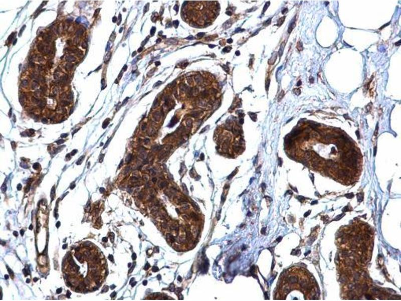 Immunohistochemistry (IHC) image for anti-rho-Associated, Coiled-Coil Containing Protein Kinase 1 (ROCK1) (N-Term) antibody (ABIN2856887)