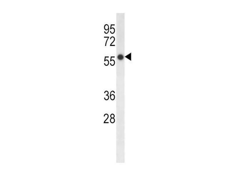 Western Blotting (WB) image for anti-Fatty Acid Desaturase 2 (FADS2) (AA 79-108), (N-Term) antibody (ABIN656230)