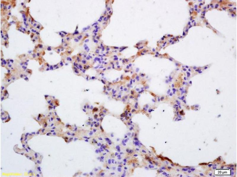 Immunohistochemistry (IHC) image for anti-Tyrosine-Protein Kinase JAK3 (JAK3) (AA 610-660) antibody (ABIN681013)