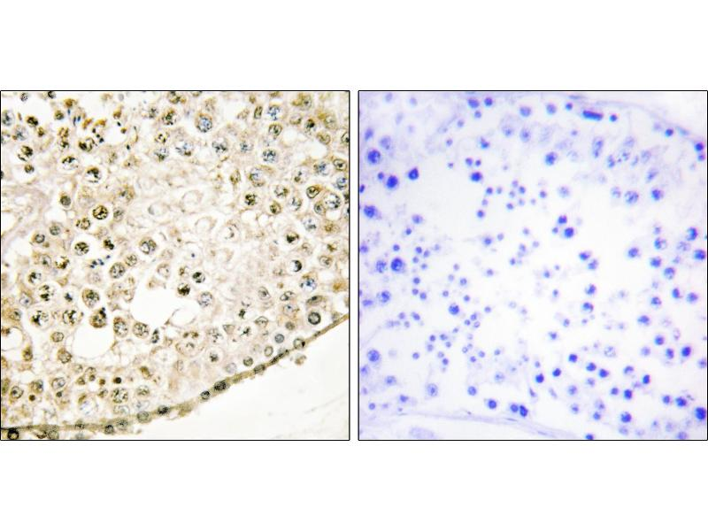 Immunohistochemistry (IHC) image for anti-SPZ1 antibody (Spermatogenic Leucine Zipper 1) (ABIN2505881)