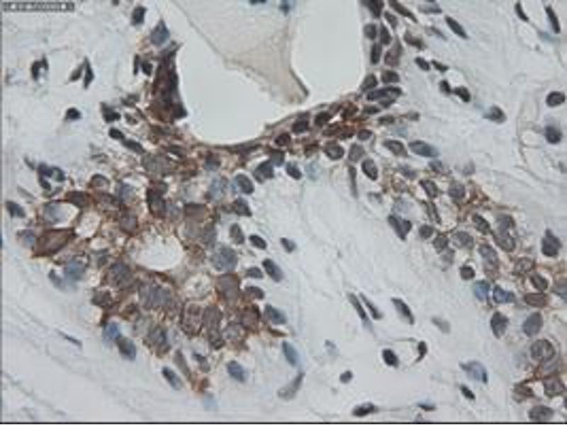 Immunohistochemistry (IHC) image for anti-Keratin 18 (KRT18) (AA 69-372) antibody (ABIN2452646)