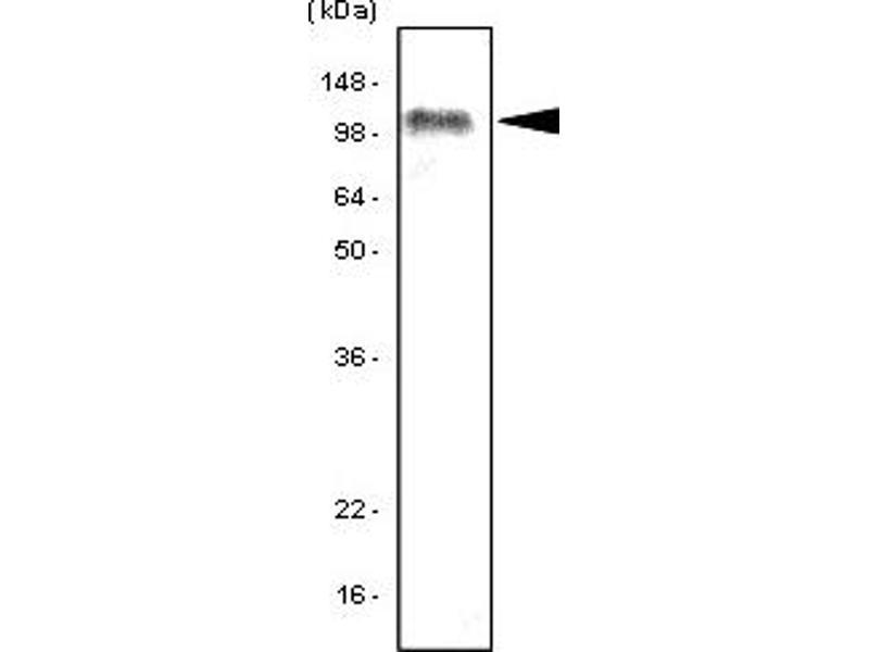 Western Blotting (WB) image for anti-Toll-Like Receptor 7 (TLR7) antibody (ABIN165464)