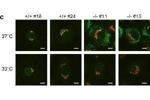 Image no. 1 for anti-Collagen, Type I (COL1) antibody (ABIN5596819)