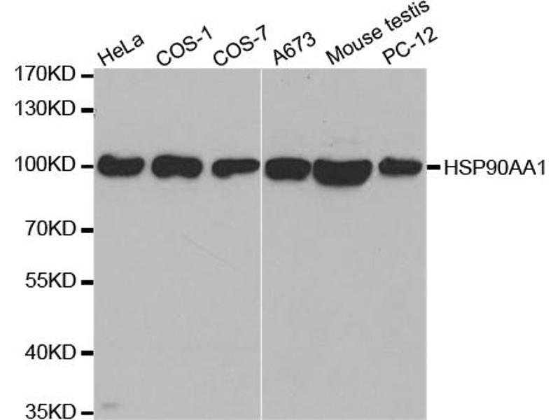 Image no. 1 for anti-Heat Shock Protein 90kDa alpha (Cytosolic), Class A Member 2 (HSP90AA2) antibody (ABIN6566582)