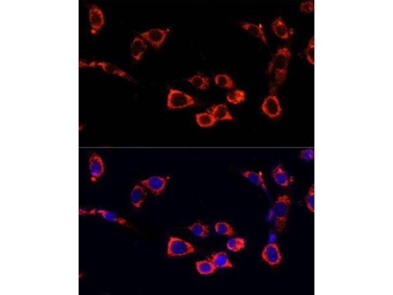 Immunofluorescence (IF) image for anti-Mechanistic Target of Rapamycin (serine/threonine Kinase) (FRAP1) antibody (ABIN6144169)