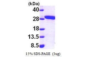 Image no. 1 for Methylmalonic Aciduria (Cobalamin Deficiency) CblB Type (MMAB) (AA 33-250) protein (His tag) (ABIN667185)