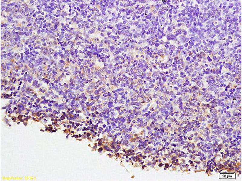 Immunohistochemistry (IHC) image for anti-NFATC1 antibody (Nuclear Factor of Activated T-Cells, Cytoplasmic, Calcineurin-Dependent 1) (AA 660-710) (ABIN686257)