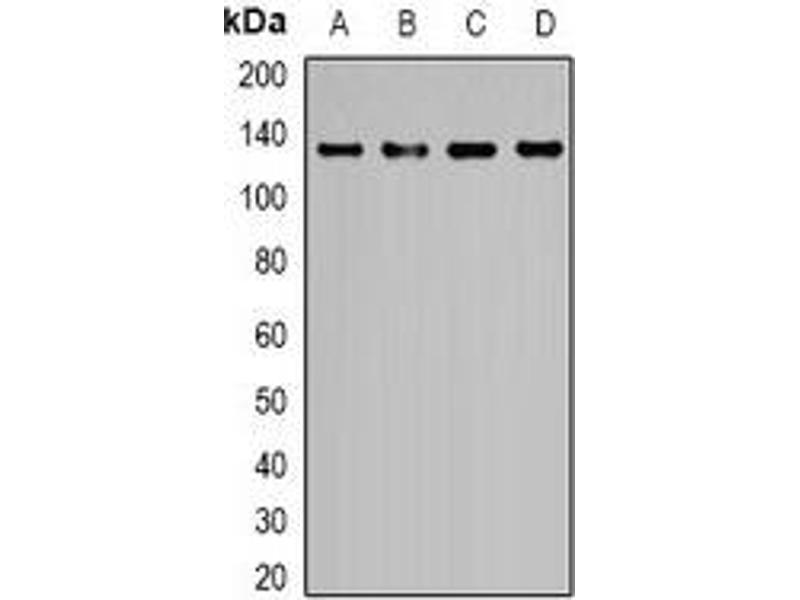 Western Blotting (WB) image for anti-Epidermal Growth Factor (EGF) antibody (ABIN3222771)