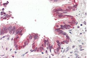 Image no. 1 for anti-Baculoviral IAP Repeat-Containing 6 (BIRC6) (C-Term) antibody (ABIN184895)
