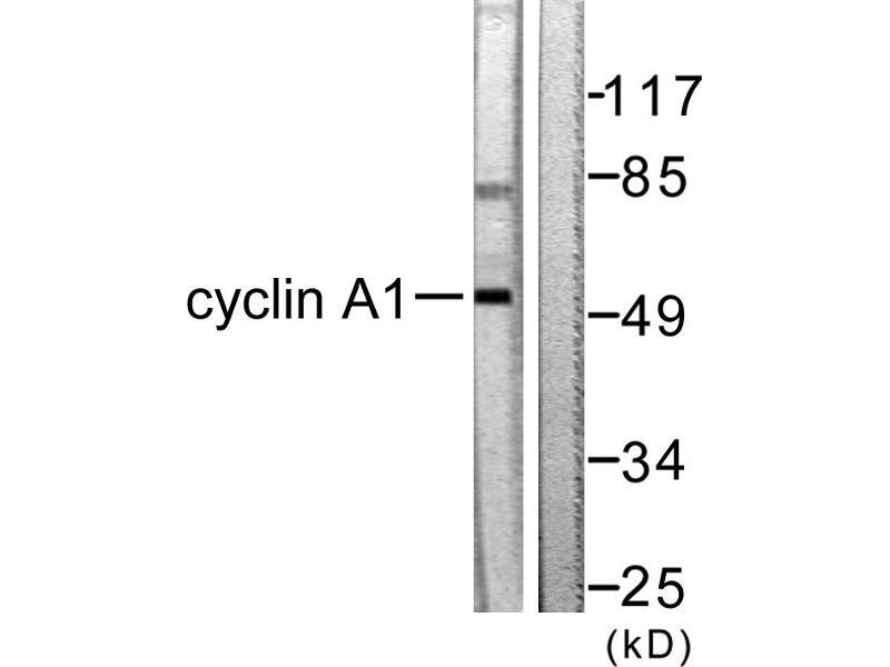 Image no. 2 for anti-Cyclin A1 (CCNA1) antibody (ABIN1575920)