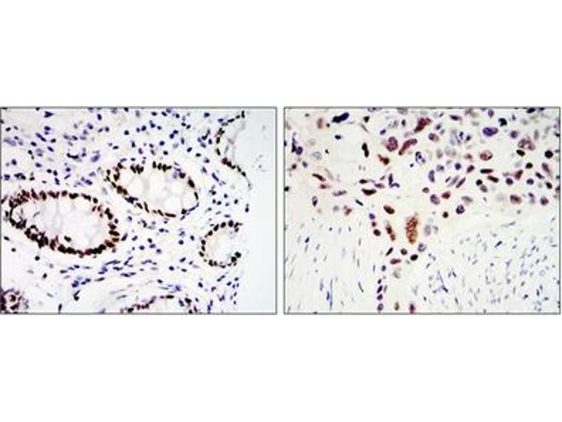Immunohistochemistry (IHC) image for anti-KLF4 antibody (Kruppel-Like Factor 4 (Gut)) (ABIN1107978)