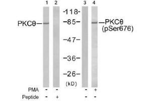 Western Blotting (WB) image for anti-PKC theta antibody (Protein Kinase C, theta) (pSer676) (ABIN4345851)