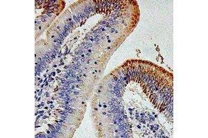 Immunohistochemistry (IHC) image for anti-Interleukin 12 Receptor beta 1 (IL12RB1) antibody (ABIN3197956)