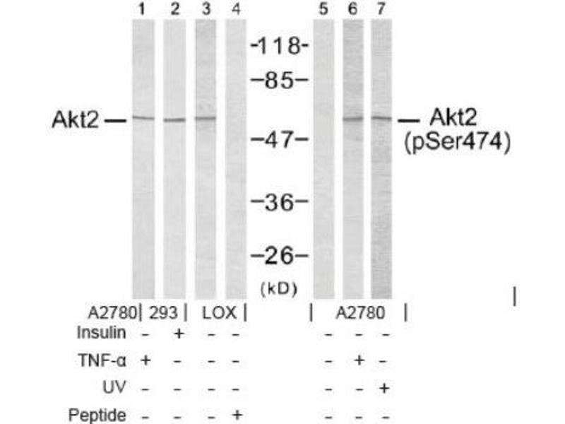 Western Blotting (WB) image for anti-V-Akt Murine Thymoma Viral Oncogene Homolog 2 (AKT2) (pSer474) antibody (ABIN4279053)