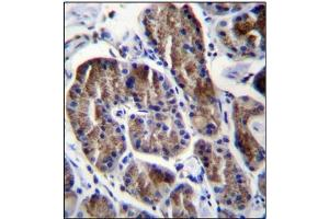 Immunohistochemistry (Paraffin-embedded Sections) (IHC (p)) image for anti-Ribosomal Protein S4, Y-Linked 1 (RPS4Y1) (AA 83-113), (Middle Region) antibody (ABIN954619)