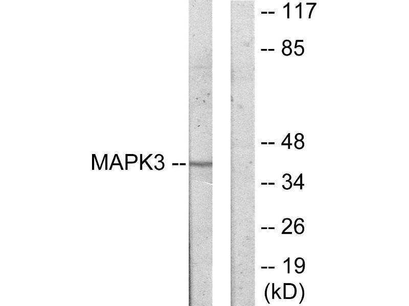 Western Blotting (WB) image for anti-MAPKAP Kinase 3 antibody (Mitogen-Activated Protein Kinase-Activated Protein Kinase 3) (ABIN2448690)