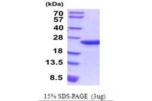 Image no. 1 for Myosin Regulatory Light Chain 2, Smooth Muscle Isoform (MYL9) (AA 1-172) protein (His tag) (ABIN5854221)