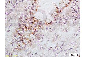 Immunohistochemistry (IHC) image for anti-Fas Ligand (TNF Superfamily, Member 6) (FASL) (AA 170-220) antibody (ABIN726410)