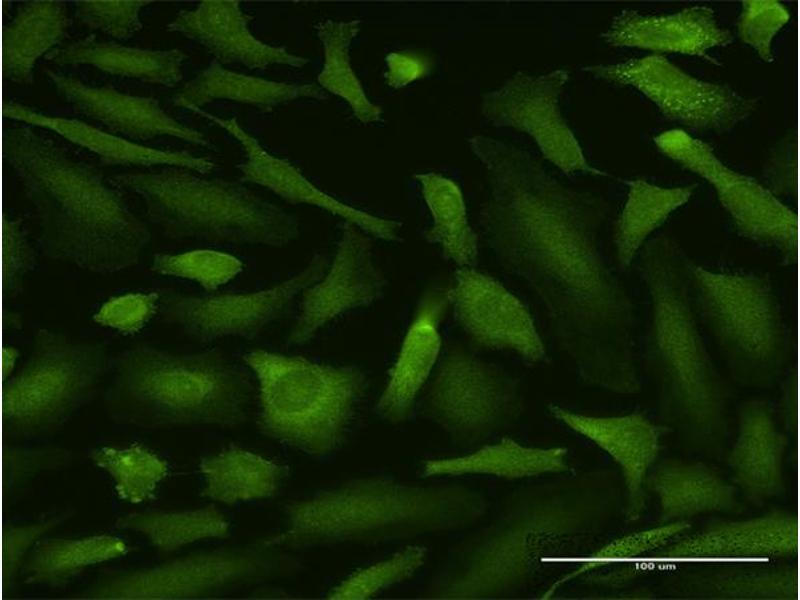 Immunofluorescence (IF) image for anti-Mucosa Associated Lymphoid Tissue Lymphoma Translocation Gene 1 (MALT1) (AA 1-813), (full length) antibody (ABIN949005)