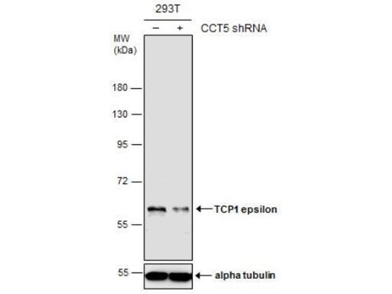 Western Blotting (WB) image for anti-Chaperonin Containing TCP1, Subunit 5 (Epsilon) (CCT5) (Center) antibody (ABIN4259104)
