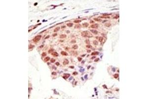 image for anti-SMT3 Suppressor of Mif Two 3 Homolog 1 (S. Cerevisiae) (SUMO1) (C-Term) antibody (ABIN356734)
