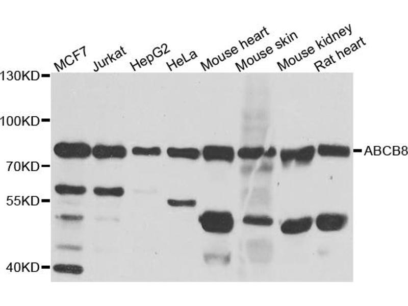 Image no. 3 for anti-ATP-Binding Cassette, Sub-Family B (MDR/TAP), Member 8 (ABCB8) antibody (ABIN6569316)