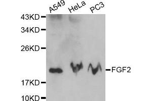 Image no. 2 for anti-Fibroblast Growth Factor 2 (Basic) (FGF2) (N-Term) antibody (ABIN3020745)