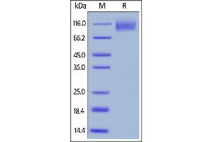 Image no. 3 for Carcinoembryonic Antigen-Related Cell Adhesion Molecule 5 (CEACAM5) (AA 35-685) protein (His tag,AVI tag,Biotin) (ABIN6386445)