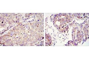 Immunohistochemistry (IHC) image for anti-Insulin-Like Growth Factor 2 MRNA Binding Protein 3 (IGF2BP3) antibody (ABIN969208)