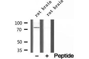 Western Blotting (WB) image for anti-Carnitine Palmitoyltransferase 1C (CPT1C) antibody (ABIN6261010)