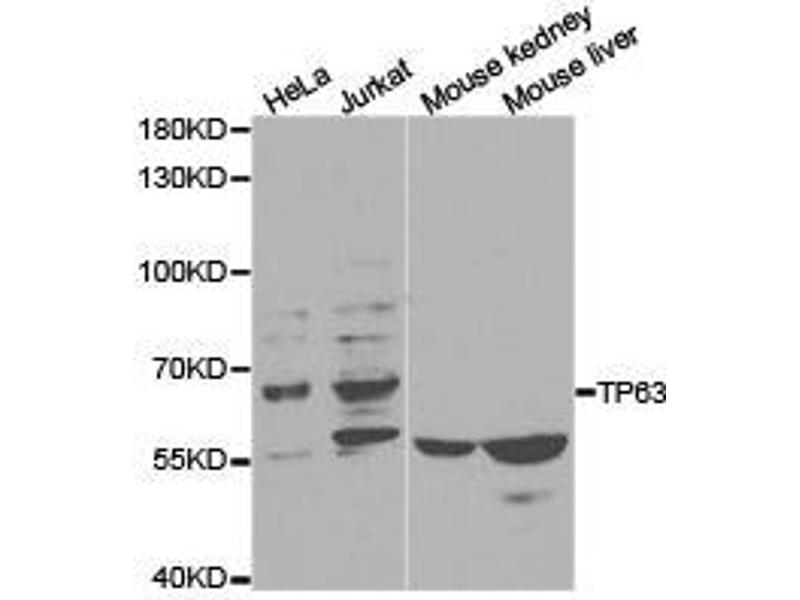 Western Blotting (WB) image for anti-Tumor Protein P63 (TP63) antibody (ABIN1875171)