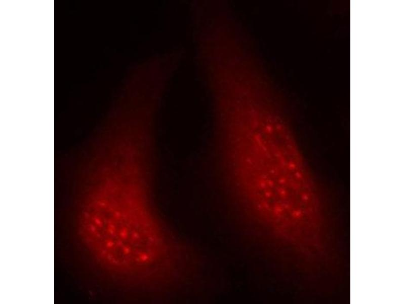 Immunofluorescence (IF) image for anti-Ribosomal Protein S6 Kinase, 90kDa, Polypeptide 1 (RPS6KA1) (pThr348) antibody (ABIN1870594)