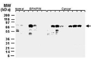 Image no. 1 for anti-Baculoviral IAP Repeat Containing 2 (BIRC2) antibody (ABIN537405)