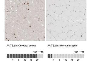Immunohistochemistry (Paraffin-embedded Sections) (IHC (p)) image for anti-Autism Susceptibility Candidate 2 (AUTS2) antibody (ABIN4282487)