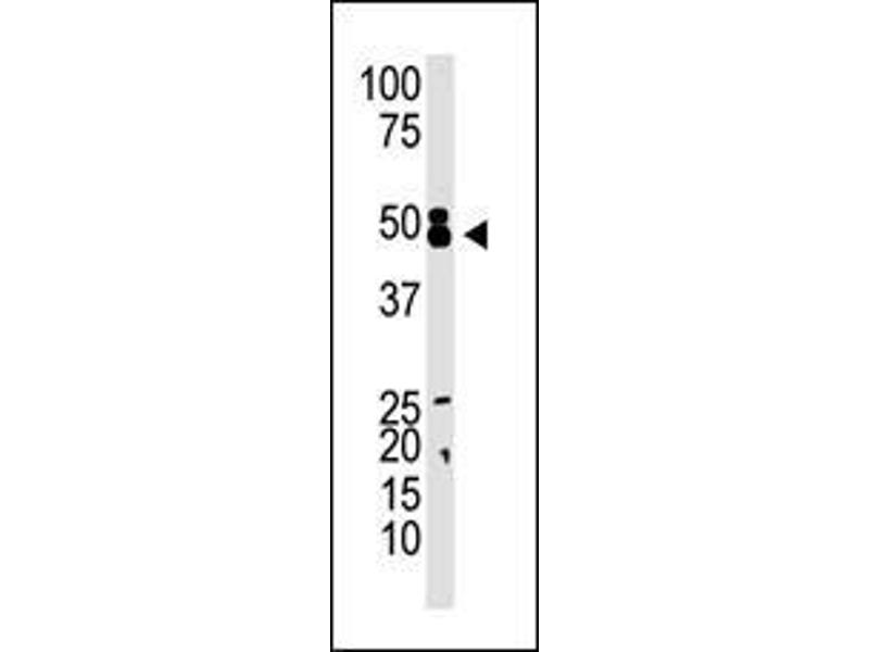 Western Blotting (WB) image for anti-CBX8 antibody (Chromobox Homolog 8) (AA 306-337) (ABIN389089)