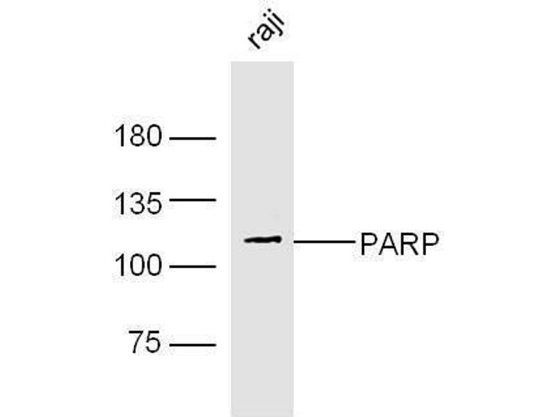 Western Blotting (WB) image for anti-PARP1 Antikörper (Poly (ADP-Ribose) Polymerase 1) (AA 200-230) (ABIN677903)