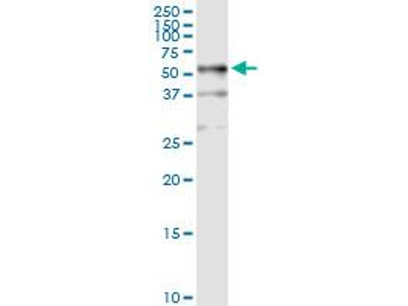 Immunoprecipitation (IP) image for anti-TUBB1 antibody (Tubulin, beta 1) (AA 1-451) (ABIN950104)