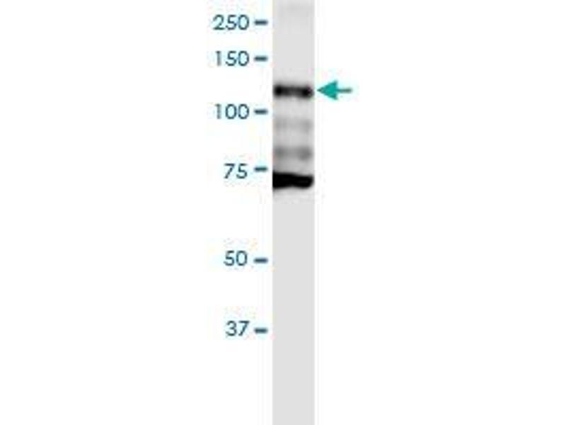 Western Blotting (WB) image for anti-Cadherin 1, Type 1, E-Cadherin (Epithelial) (CDH1) (AA 381-480), (partial) antibody (ABIN560274)