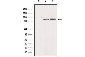 Image no. 2 for anti-Hepatocyte Growth Factor (Hepapoietin A, Scatter Factor) (HGF) antibody (ABIN6262230)