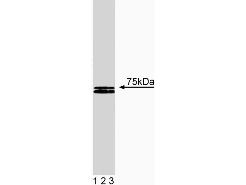 Western Blotting (WB) image for anti-HCLS1 antibody (Hematopoietic Cell-Specific Lyn Substrate 1) (AA 17-190) (ABIN968026)