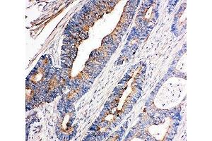 Immunohistochemistry (IHC) image for anti-Nuclear Receptor Subfamily 4, Group A, Member 3 (NR4A3) (AA 612-631) antibody (ABIN3032066)