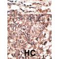 Formalin-fixed and paraffin-embedded human cancer tissue reacted with the primary antibody, which was peroxidase-conjugated to the secondary antibody, followed by AEC staining. BC = breast carcinoma. HC = hepatocarcinoma