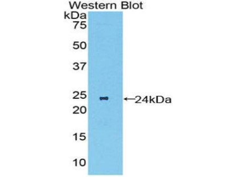 Western Blotting (WB) image for anti-Macrophage Stimulating 1 Receptor (C-Met-Related tyrosine Kinase) (MST1R) (AA 89-275) antibody (ABIN1859892)