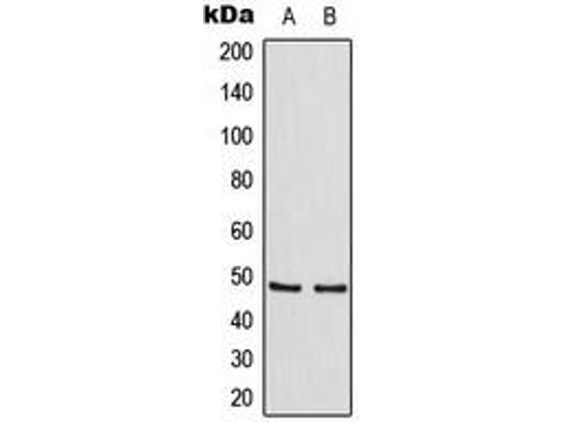 Western Blotting (WB) image for anti-TRAF Family Member-Associated NFKB Activator (TANK) (Center) antibody (ABIN2707137)