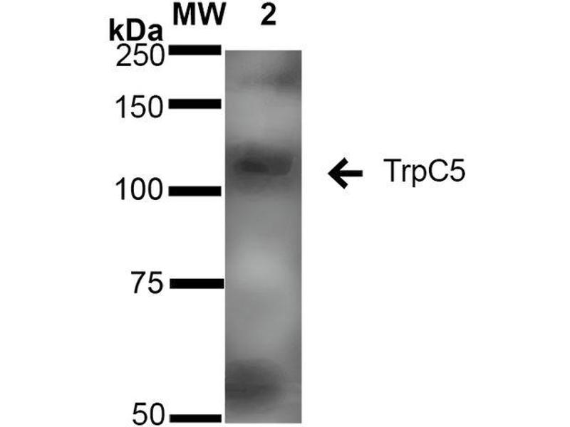 Western Blotting (WB) image for anti-Transient Receptor Potential Cation Channel, Subfamily C, Member 5 (TRPC5) (AA 827-845) antibody (FITC) (ABIN2485379)